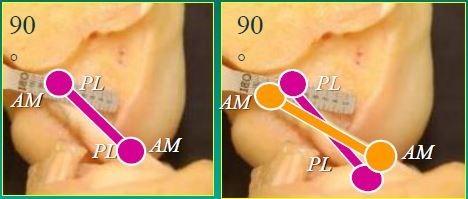 Εικόνα 1: Αριστερά: αποκατάσταση μίας δεσμίδας του πρόσθιου χιαστού. Δεξιά: αποκατάσταση δύο δεσμίδων του πρόσθιου χιαστού, όπως προτείνεται από το Κέντρο μας