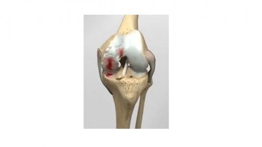 χειρουργική-αντιμετώπιση-της-οστεοαρθρίτιδας-του-γόνατος-Κλινική-«Κυανούς-Σταυρός-Euromedica»-Θεσσαλονίκης