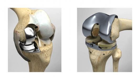 Αντικατάσταση μόνον του φθαρμένου τμήματος της άρθρωσης, με διατήρηση του υπόλοιπου υγιούς τμήματος με τους χιαστούς συνδέσμους (αριστερά). Αντικατάσταση όλης της άρθρωσης στην ολική αρθροπλαστικη (δεξιά).