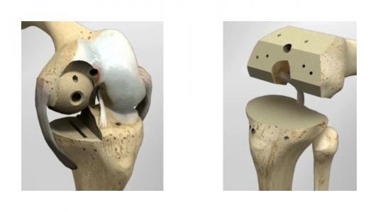 Εικόνα 4:  Περιορισμένες  οστεοτομίες μόνον στον φθαρμένο τμήμα της άρθρωσης (αριστερά) συγκριτικά με τις εκτεταμένες οστεοτομίες στην ολική αρθροπλαστική (δεξιά).