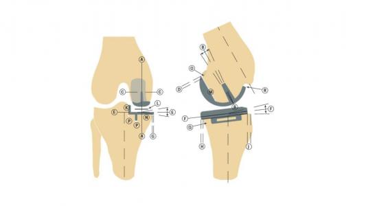 Εικόνα 5: Πολλαπλά σημεία ελέγχου για την άρτια τοποθέτηση της διαμερισματικής αρθροπλαστικής, σύμφωνα με την τεχνική που χρησιμοποιούμε.