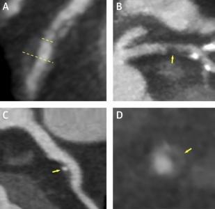 Χαρακτηριστικά υψηλού κινδύνου όπως απεικονίζονται στη μελέτη scott heart