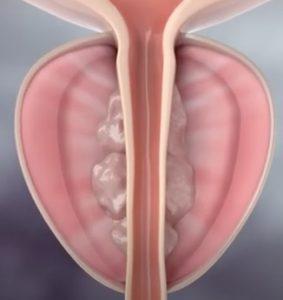 Συρρίκνωση προστάτη 3 μήνες μετά τη θεραπεία