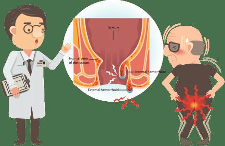 αιμορροϊδοπάθεια